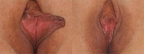 vaginoplastica-a