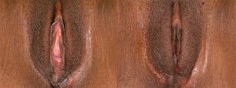 vaginoplastica-r